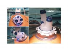jack_in_gynaecology1.jpg